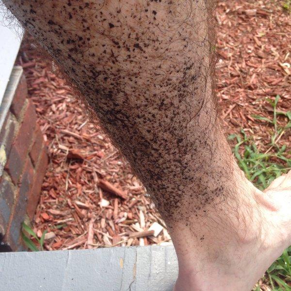 A case of trail runner's leg